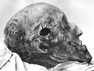 Karl XII: huvud fotograferat vid gravöppningen 1917. Hålet efter dödskottet vid Haldens fästning 1718 syns i tinningen.